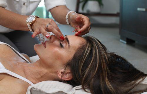 Naučna studija dokazala da AKUPUNKTURA može da ublaži efekte MIGRENE