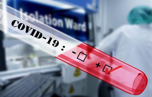 Zabrinjavajuća studija sa Oksforda: DUGOROČNE POSLEDICE kod obolelih od koronavirusa
