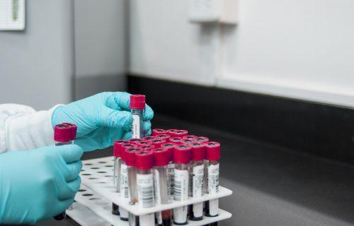 Ako je test na koronu negativan, ne znači da nismo inficirani: Doktorka objašnjava kako je to moguće!