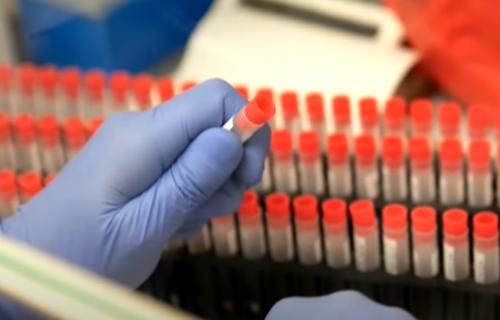 Ruski ministar zdravlja OTKRIO koliko dugo štiti vakcina protiv korone: Bićete bezbedni za ovaj period!