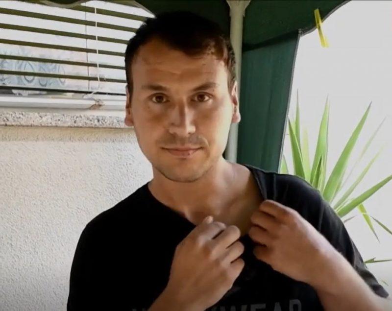 Milanu crv GMIŽE ispod kože: Godinama trpi nesnosne bolove, jednom je zabio tri IGLE u njega (FOTO)