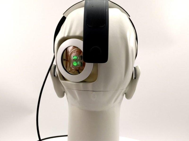 Moždani implant iz Australije NOVA NADA za slepe osobe (FOTO)