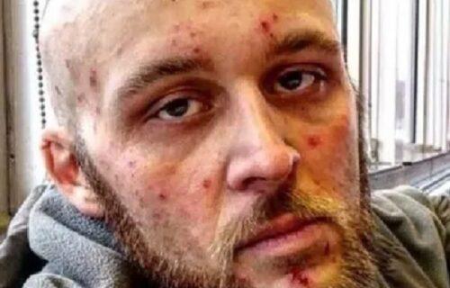 Ćerka i familija nisu ga prepoznali: Zavisnik podelio slike kad je bio narkoman, pa posle SKIDANJA (FOTO)