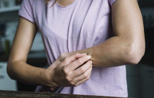 Imate problem sa EKCEMOM? Postoji 5 prirodnih i efikasnih načina LEČENJA
