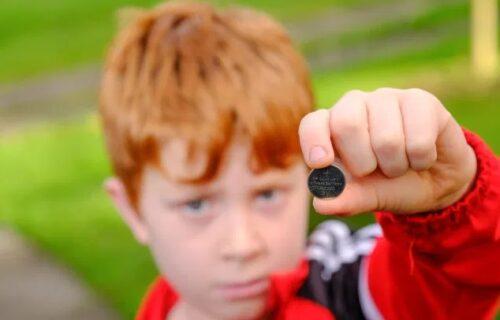 Dečak (8) posle svađe s roditeljima PROGUTAO bateriju: Pao na pod i počela je borba za život