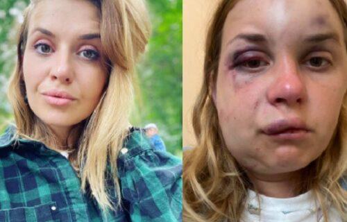 Voditeljku Anastasiju pred sinom u vozu pretukao manijak: Pokušao i da je siluje, a onda se dogodio OBRT