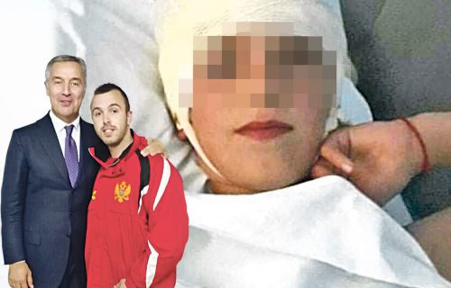 Milov bokser umalo UBIO srpsko dete: Draško (9) jedva preživeo SUMANUTI napad mržnje aktiviste DPS (FOTO)