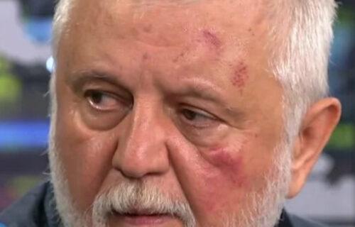 Antonijević se pojavio na televiziji sa PODLIVIMA na licu: Reditelj opisao MUČKI napad Bjelogrlića (FOTO)