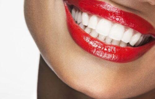 Čuvajte svoje zube na pravi način: Radite ovih OSAM stvari i zaboravićete na odlazak kod zubara