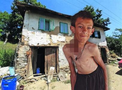 POTRESNE FOTOGRAFIJE: Marko (16) ima potkožne tumore po telu, šipku u kičmi i isti SAN godinama!